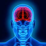 X-ray of brain