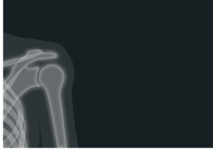 X-ray of shoulder